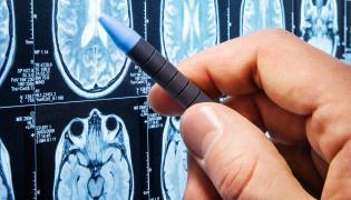 Zdjęcia mózgu wykonane tomografem komputerowym
