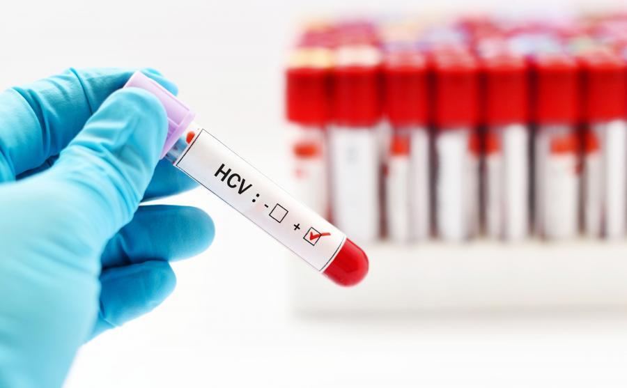 Próbka krwi na badanie HCV