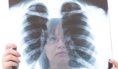 Problemy z płucami mają coraz młodsi pacjenci