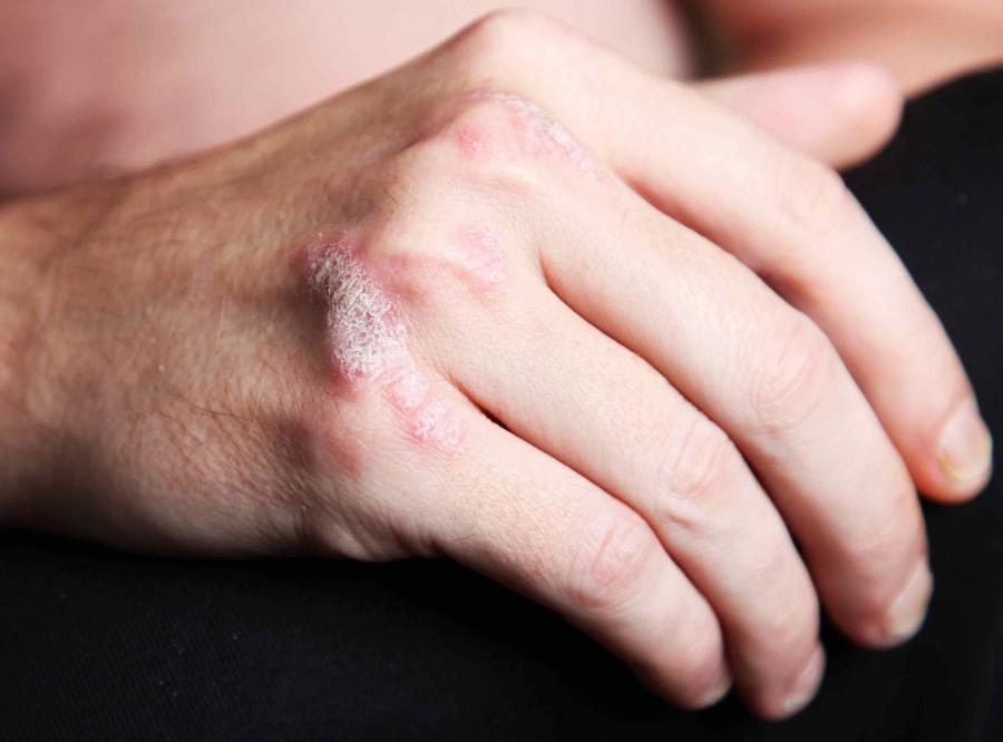 Program leczenia lekami biologicznymi chorych na łuszczycę plackowatą zostanie przyjęty przez resort zdrowia po poprawkach
