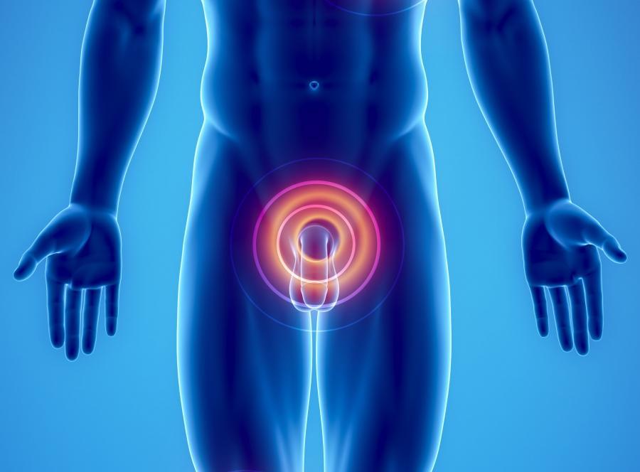 Zabieg obrzezania jako profilaktyka nowotworu prostaty?