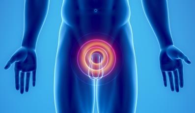 Odkryto mutację genu odpowiedzialną za rozwój raka prostaty