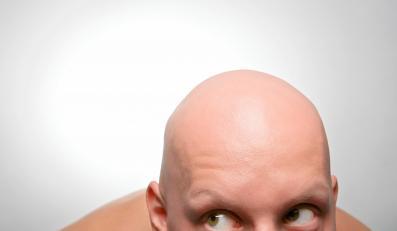 Jest wiele przyczyn wypadania włosów