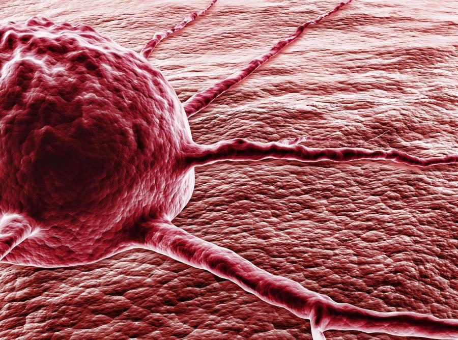 Komórka rakowa