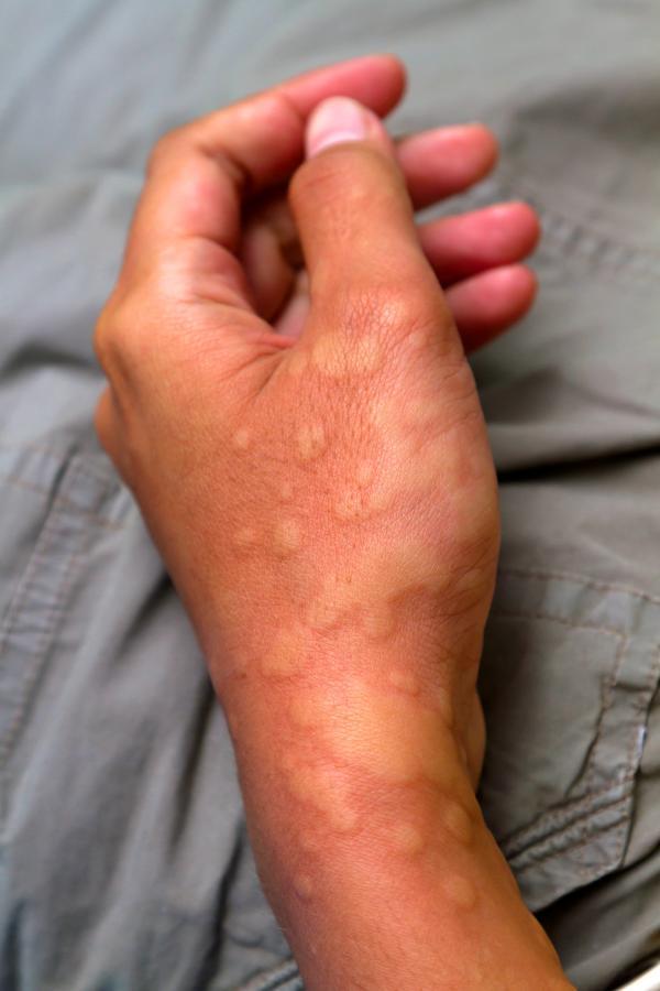 odra pokrzywka wysypka alergia