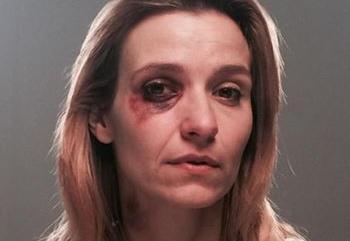 Joanna Koroniewska z podbitym okiem. Szokujące zdjęcie aktorki