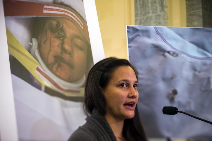 Stephanie Erdman zeznaje przed komisją Senatu USA. Kobieta przestała widzieć na prawe oko - oślepił ją odłamek z wybuchającej poduszki firmy Takata