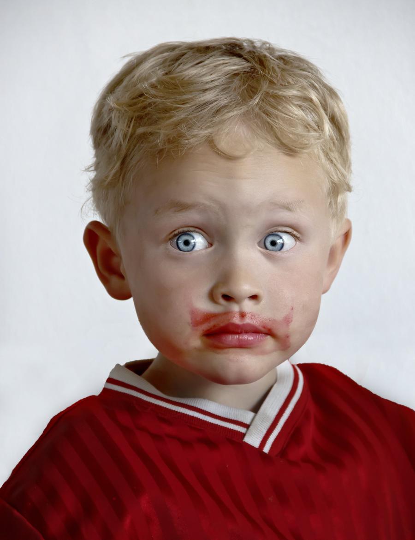 Burak przeciwko anemii